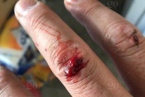 تفسير رؤية الجرح في المنام