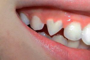 تفسير حلم سقوط الاسنان الامامية في المنام