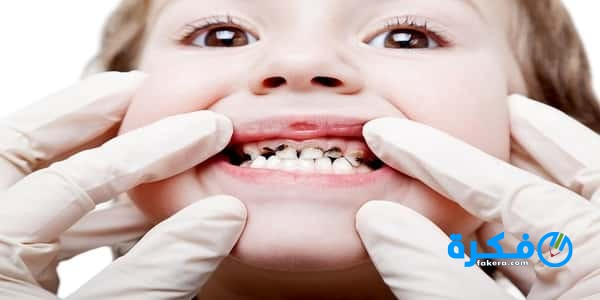 علاج وجع الأسنان للأطفال