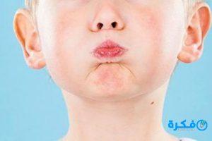 سبب الزغطة وعلاجها للأطفال
