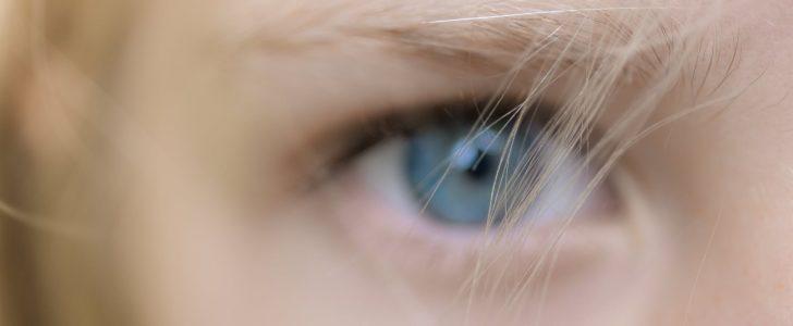 تفسير حلم فقع العين
