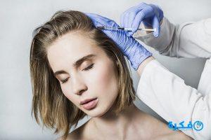 زراعة الشعر عن طريق الخلايا الجذعية