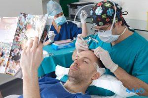 زراعة الشعر باستخدام شعر الجسم تقنية bht