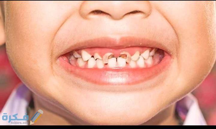 علاج تسوس الاسنان عند الاطفال موقع فكرة