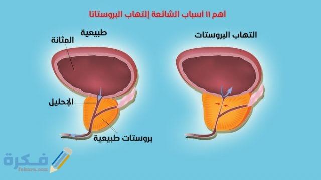 أسباب التهاب البروستاتا