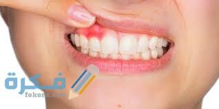 علاج خراج الأسنان المزمن في المنزل
