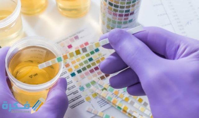 مدة صلاحية عينة البول للتحليل والطريقة الصحيحة لأخذ عينة