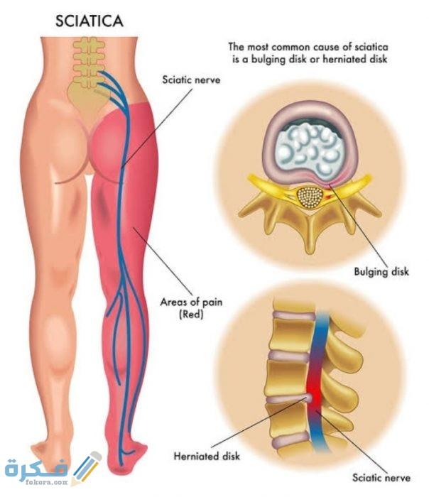 أعراض الديسك في القدم والانزلاق الغضروفي الوركي