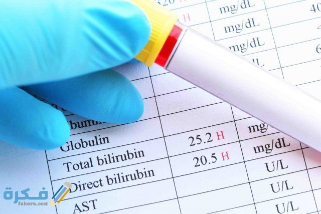 تحليل وظائف الكبد يحتاج صيام المعدل الطبيعي لأنزيمات