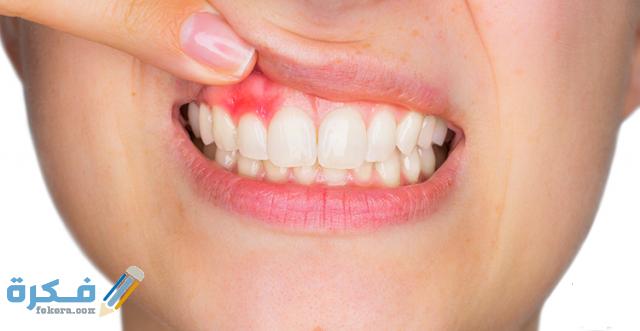 ما هو خراج الأسنان