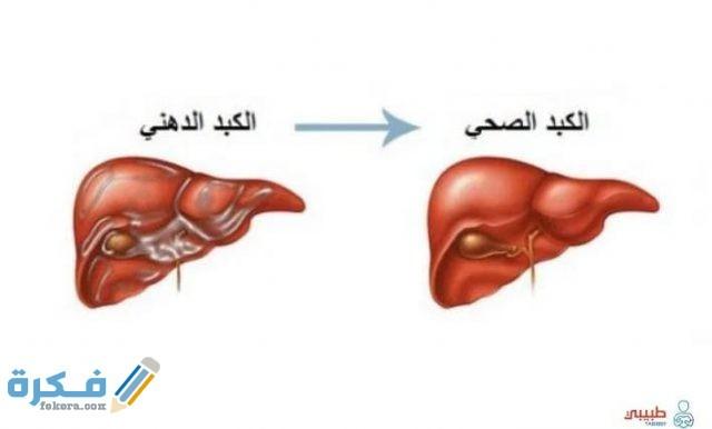 كم نسبة دهون الكبد الطبيعية