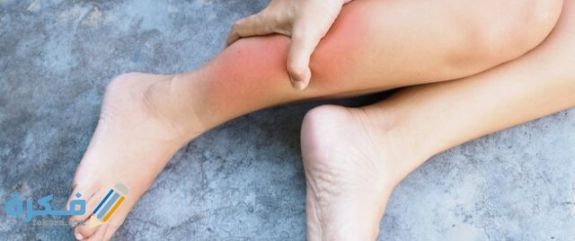 مفهوم التهاب الاوتار
