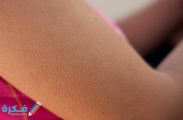 أسباب وعلاج جلد الوزة بالفازلين 9