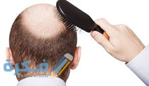 شعري يتساقط من جذوره بكثرة ما السبب و العلاج؟